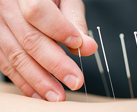 Physiotherapy, Acupuncture Winnipeg | Elite Sports Injury Clinics