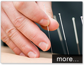 Acupuncture Winnipeg, Elite Physiotherapy Downtown, St Vital.